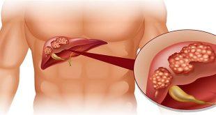 Tổng quan về ung thư gan