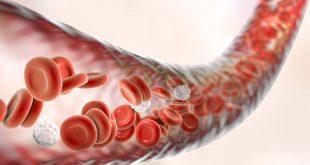 Triệu chứng của bệnh bạch cầu mãn tính dòng Lympho