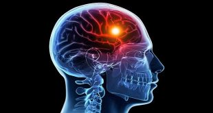 U màng não - Các lựa chọn điều trị