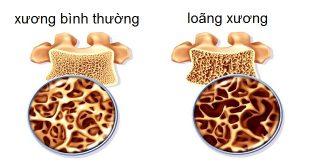 Loãng xương sau điều trị ung thư vú
