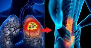 quản lý và điều trị đau xương ung thư phổi không tế bào nhỏ di căn