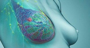 Quản lý khả năng sinh sản sau điều trị và chẩn đoán ung thư vú nguyên phát