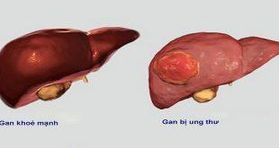 Tóm tắt về các khuyến cáo điều trị cho ung thư gan giai đoạn di căn