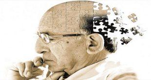 Chẩn đoán, điều trị, quản lý sa sút trí tuệ tại tuyến ban đầu