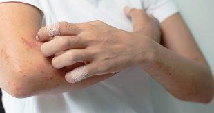 Viêm cơ- viêm đa cơ và viêm da cơ