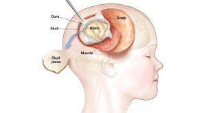 U màng não thất ở trẻ em: Chẩn đoán