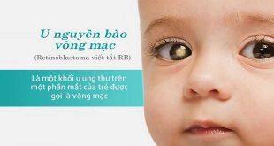 U nguyên bào võng mạc ở trẻ em: Phương pháp điều trị