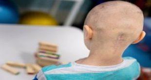 U màng não thất ở trẻ em: Dấu hiệu và triệu chứng