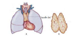 u tuyến ức và ung thư biểu mô tuyến ức các phương pháp điều trị