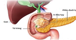 Ung thư tụy: Lựa chọn điều trị theo giai đoạn