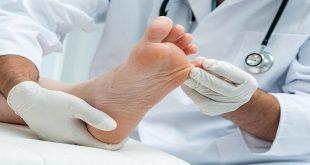 Chăm sóc bàn chân với người tiểu đường