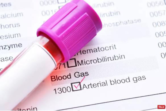 Khí máu động mạch