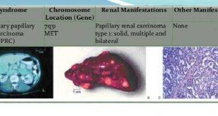 Ung thư biểu mô thận dạng nhú di truyền