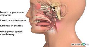 Ung thư mũi hầu: các loại điều trị (2)
