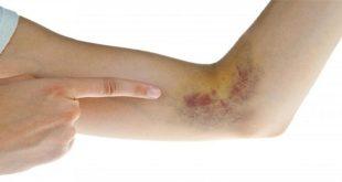 Chảy máu và các mảng bầm tím trong điều trị ung thư