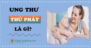 Ung thư thứ phát là gì?