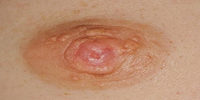 Bệnh Paget vú