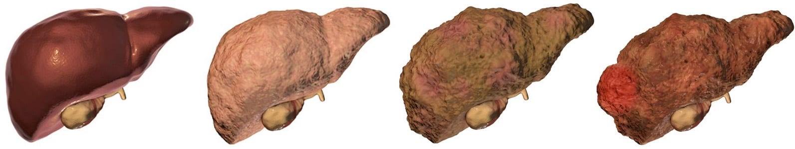 Những triệu chứng ung thư gan giai đoạn cuối