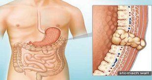 U mô đệm đường tiêu hóa (GIST) - Giai đoạn bệnh