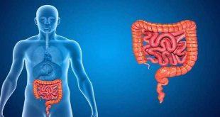U mô đệm đường tiêu hóa (GIST) - Các yếu tố nguy cơ