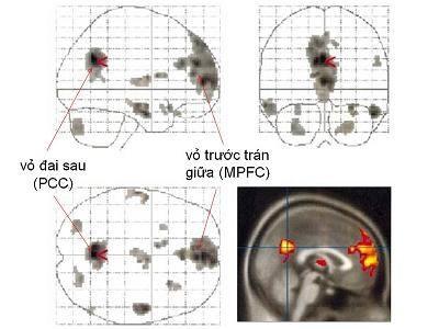 """(f-MRI) Sự kích hoạt của các vùng não khi con người ý thức về cái """" ta """" (self-awareness) hay quan tâm đến cái """" ta """" (self-preoccupation)"""