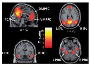"""(f-MRI) Sự kích hoạt của các vùng não thuộc """" Mạng chế độ mặc định """"(DMN)"""