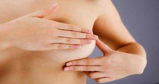 Ung thư vú ở phụ nữ trẻ