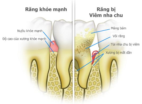 Ảnh hưởng của bệnh nha chu đối với các tổ chức quanh răng