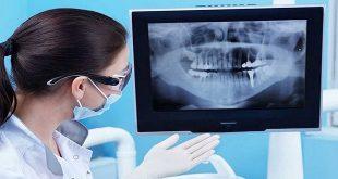 Sử dụng X-quang an toàn trong nha khoa
